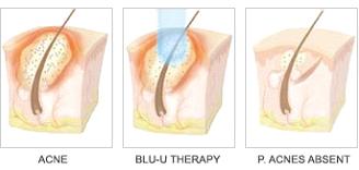 Blu-U Therapy