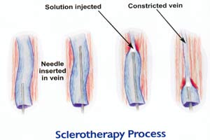 Sclerotherapy Process