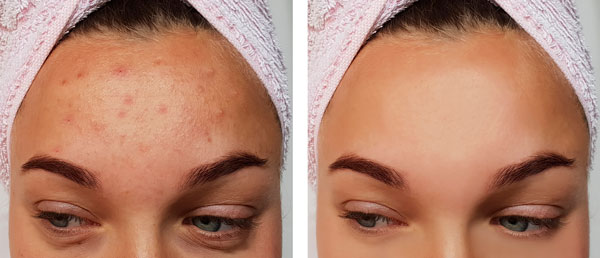 Photo of Acne treatment before and after