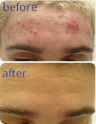 Photo of Acne treatment for men before and after