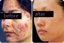 Photo of Acne treatment for women before and after