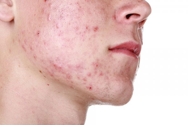 Photo of Acne or acne vulgaris
