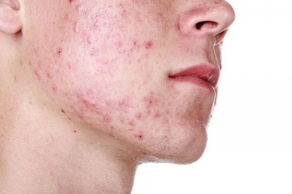 Photo of Acne or acne vulgaris