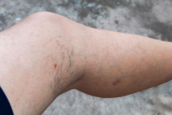 Cayuga Vein Laser Treatment