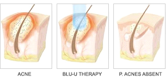 Blu-U Therapy Stoney Creek