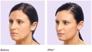Juvéderm™ before and after