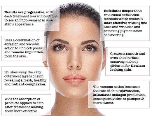 Photo of Microdermabrasion Oakville treatment features