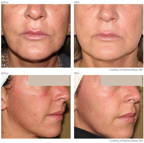 Photo of a Hamilton client, before and after a Photorejuvenation treatment