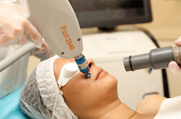 Photo of Pixel Laser Resurfacing treatment Oakville