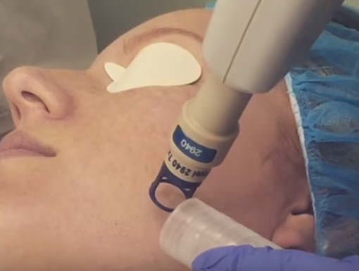 Photo of Pixel Laser Skin Resurfacing treatment for Brant
