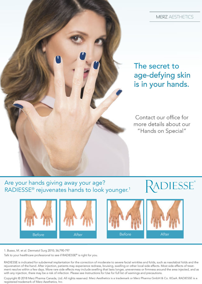 RADIESSE rejuvenates your hands