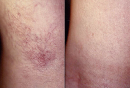 Sclerotherapy Spider Veins Treatment
