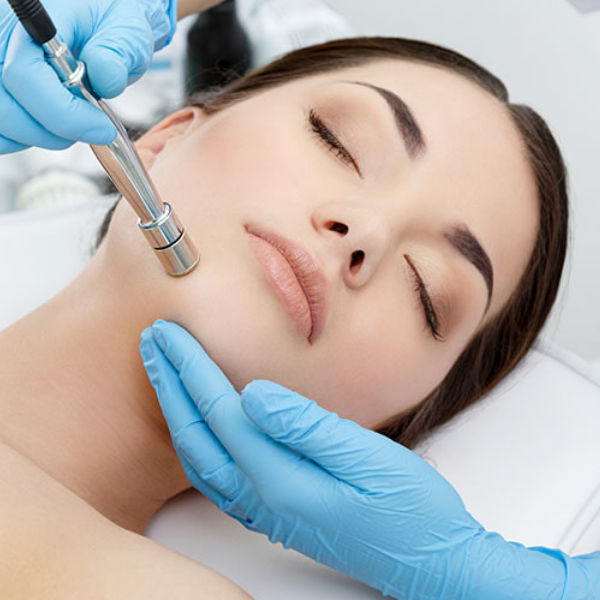 Photo of Microdermabrasion facial treatment in Hamilton